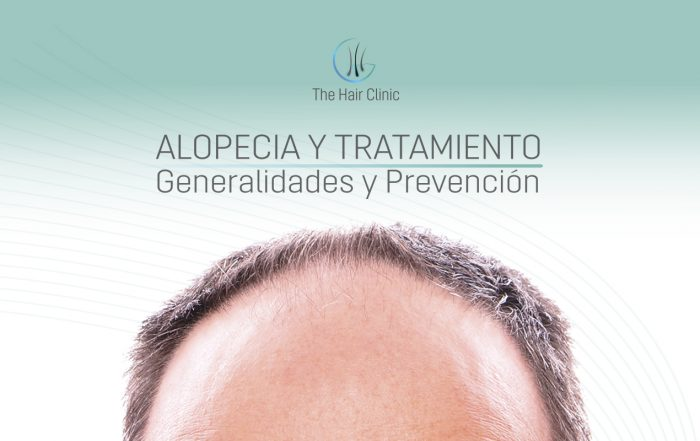Alopecia and Treatment