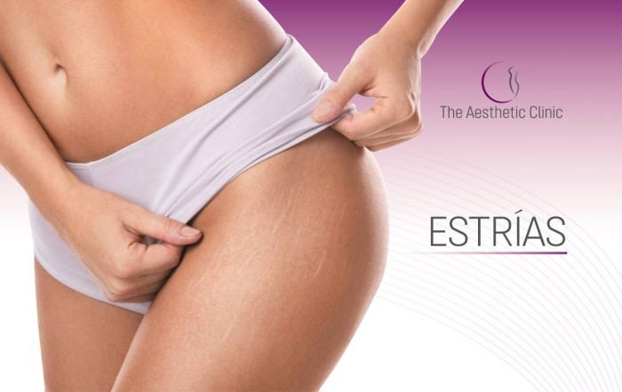 blog Recuperadoestrias 700x441 - How Do We Eliminate Stretch Marks?