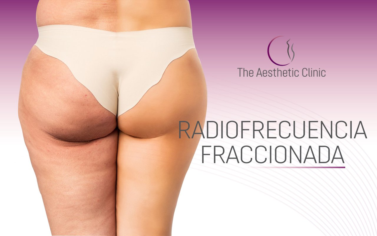 Fractionated radiofrequency with microneedles